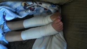 Andrew's feet