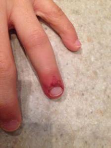 andrew's finger 2