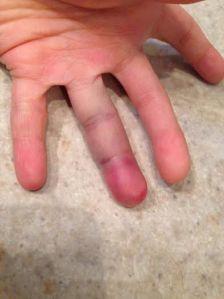 Andrew's finger